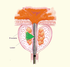 Benign Prostatic Hyperplasia Bph In Singapore Chin Chong