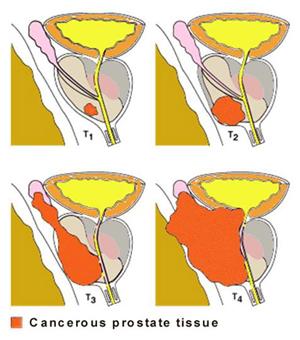 i appendicitis symptoms in women