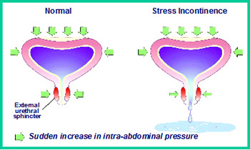 incontinence advice support what does sensitive bladder mean